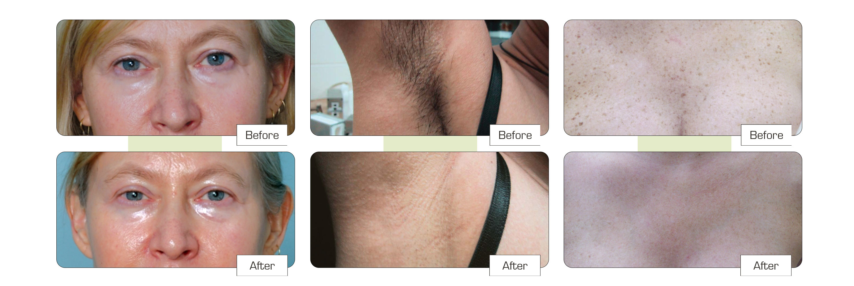 Laser hair removal Colchester before and after images
